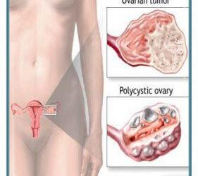 Ploycystic Ovarian Disease